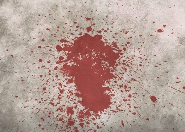 Sangrando muito na gravidez